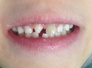 Second child's teeth before.