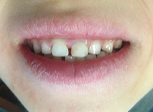 Second child's teeth after.