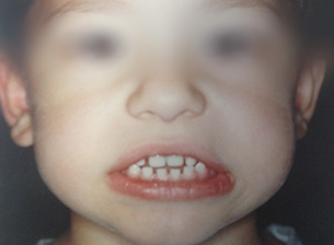 Sixth child's teeth before.